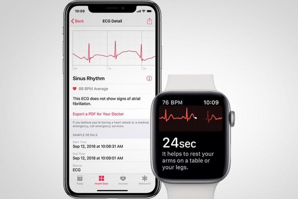 Apple Watch Series 4'e EKG özelliğinin gelişi yakın