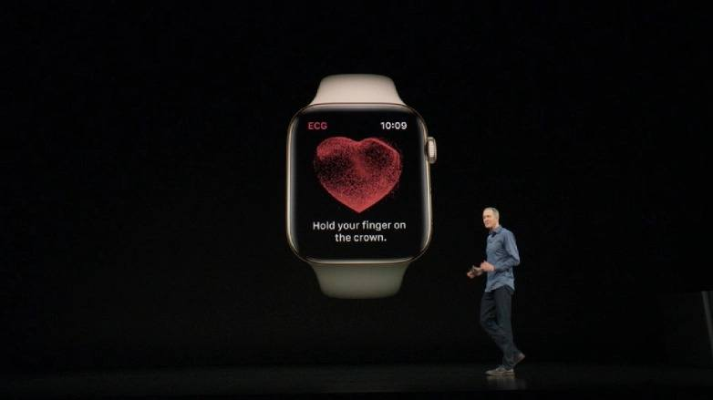 apple watch kalp ekg